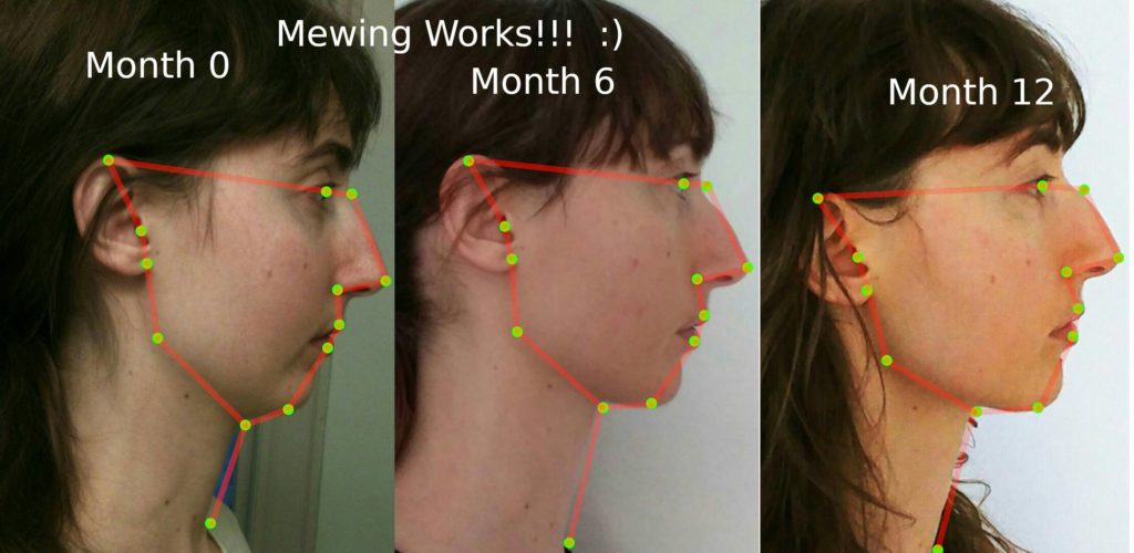 12 Month Mewing Progression 23 Years of Age
