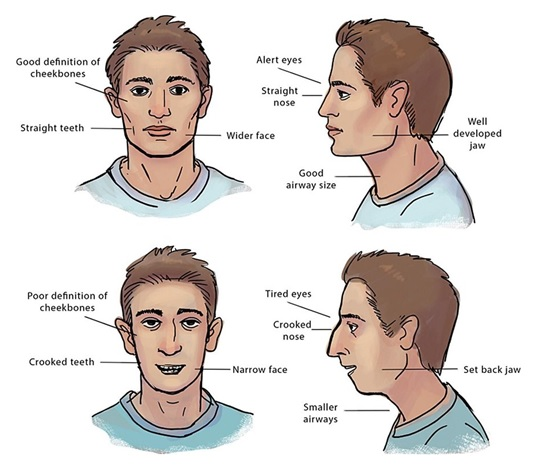 Facial Characteristics of a Mouth-Breather
