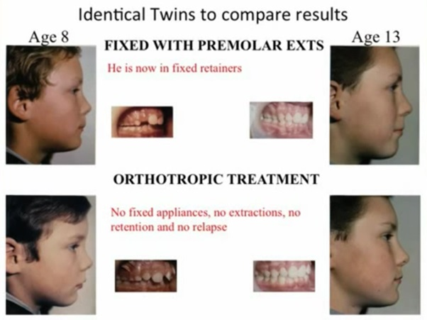 Orthotropic Treatment Identical Twins