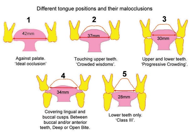 The Effect of Tongue Position on Malocclusions